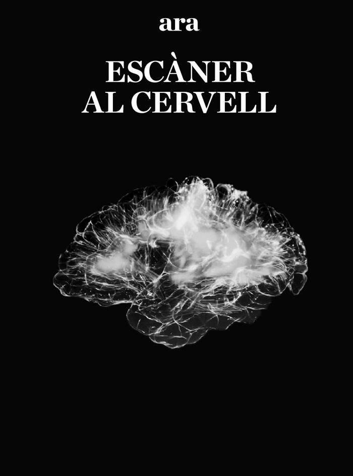 Escàner al cervell