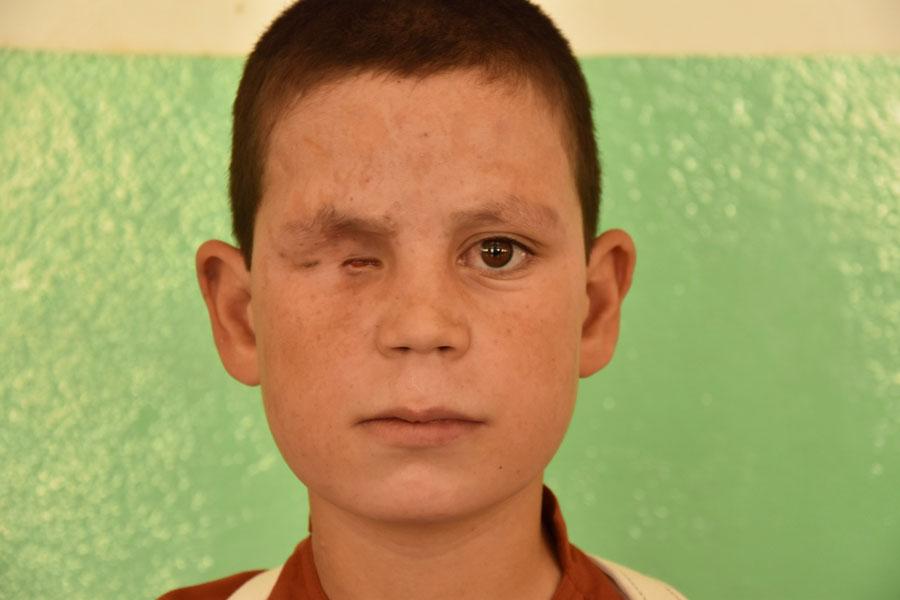 Farshid, de 13 anys, va perdre un ull i va quedar greument amputat a causa d'una mina antipersona.